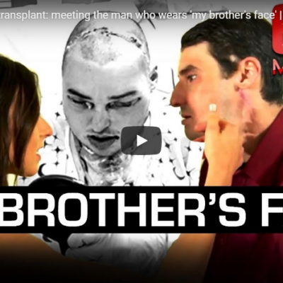 World first face transplant: meeting the man who wears 'my brother's face